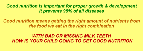 Good nutrition is important for proper growth & development It prevents 95% of all diseases  Good nutrition means getting the right amount of nutrients from the food we eat in the right combination  WITH BAD OR MISSING MILK TEETH  HOW IS YOUR CHILD GOING TO GET GOOD NUTRITION